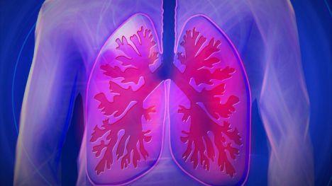 Se extrajo el pulmón canceroso, ya sano regresó... a su cuerpo
