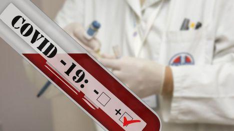 Sanidad no recomienda los tests rápidos de anticuerpos para el autodiagnóstico